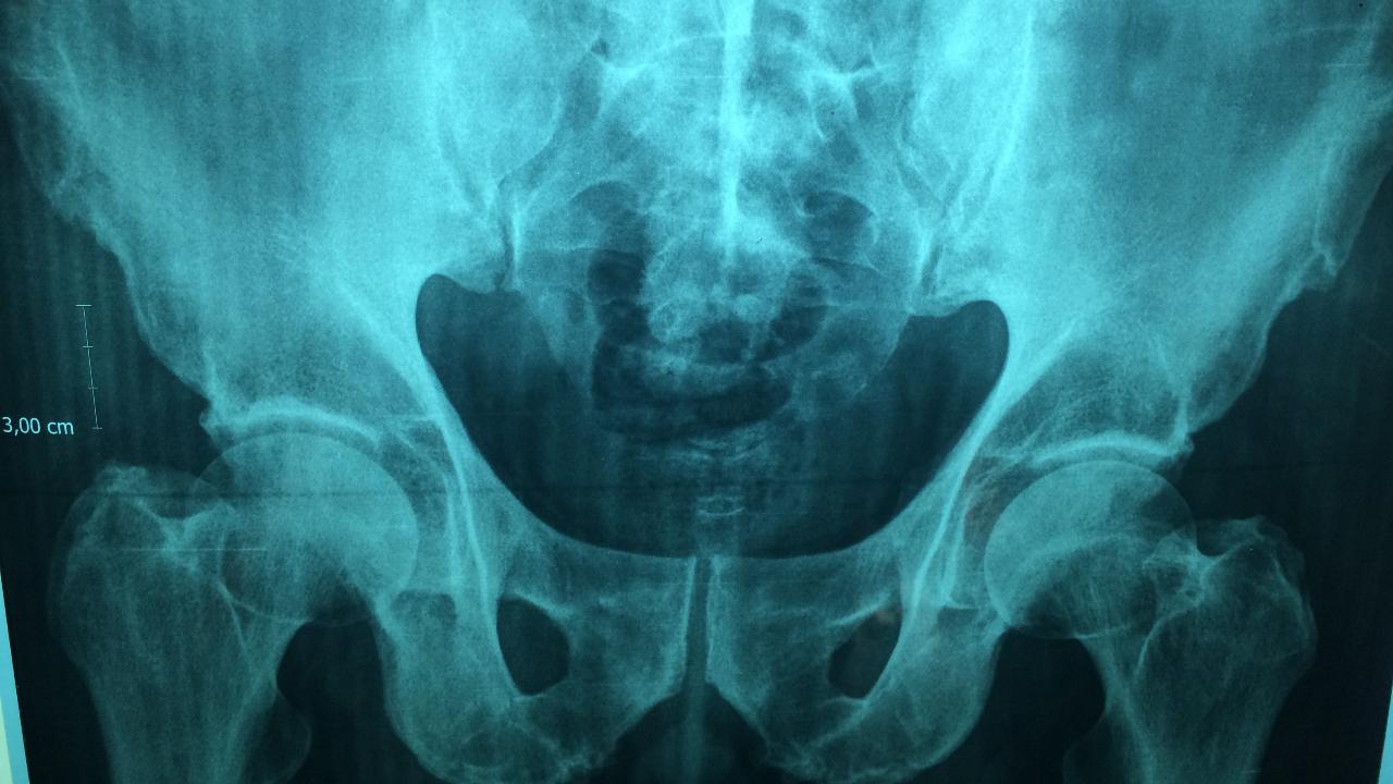 Importancia de los rayos X
